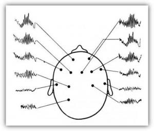 EEG-300x255